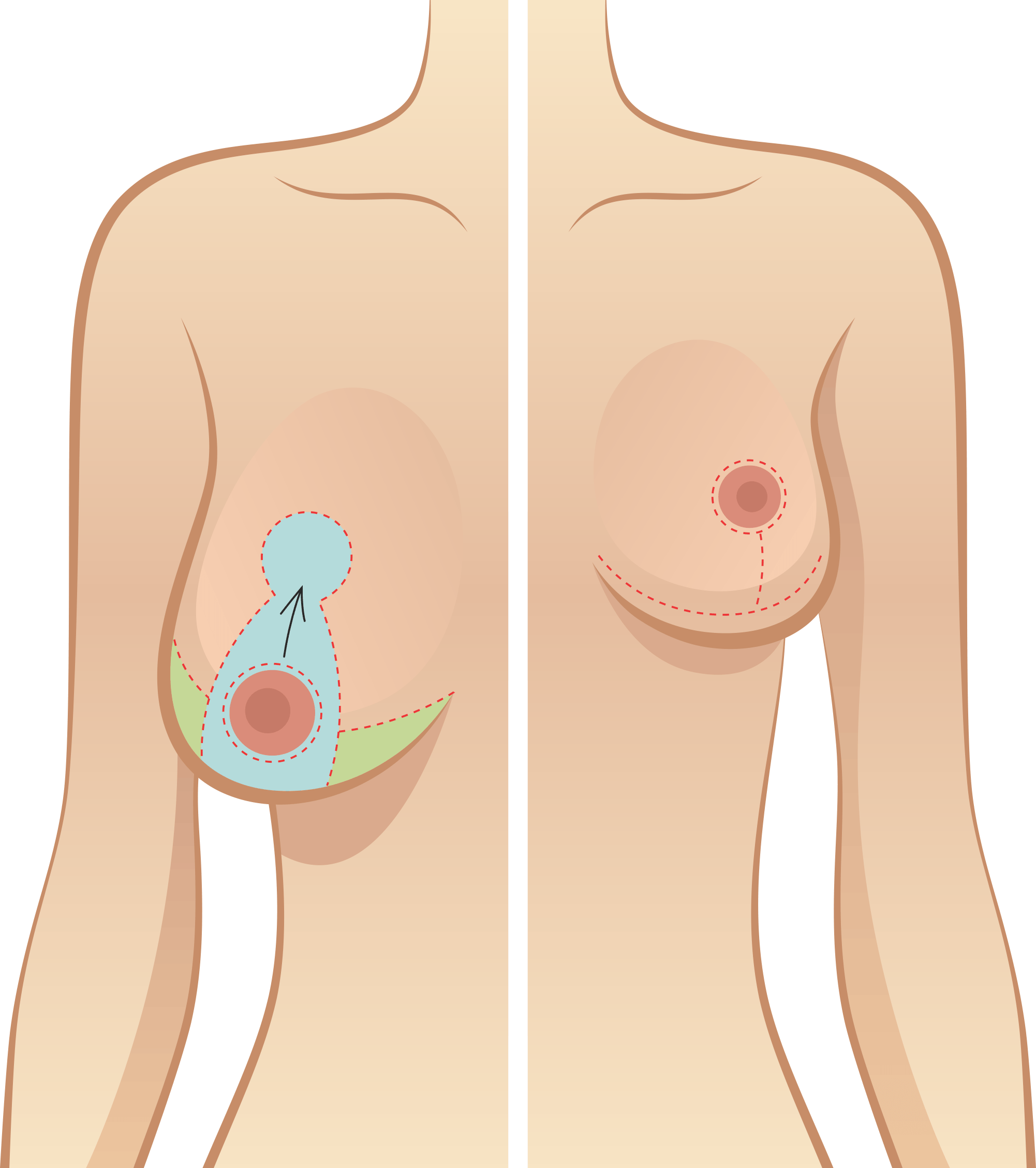 procedure Breast reduction surgical